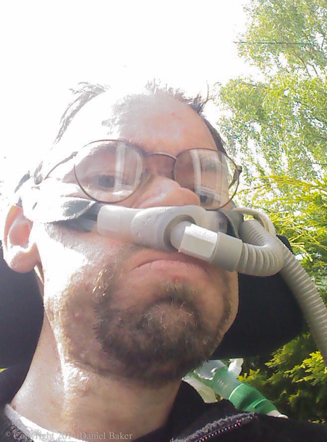 Selfie of Daniel Baker wearing nasal vent with trees behind