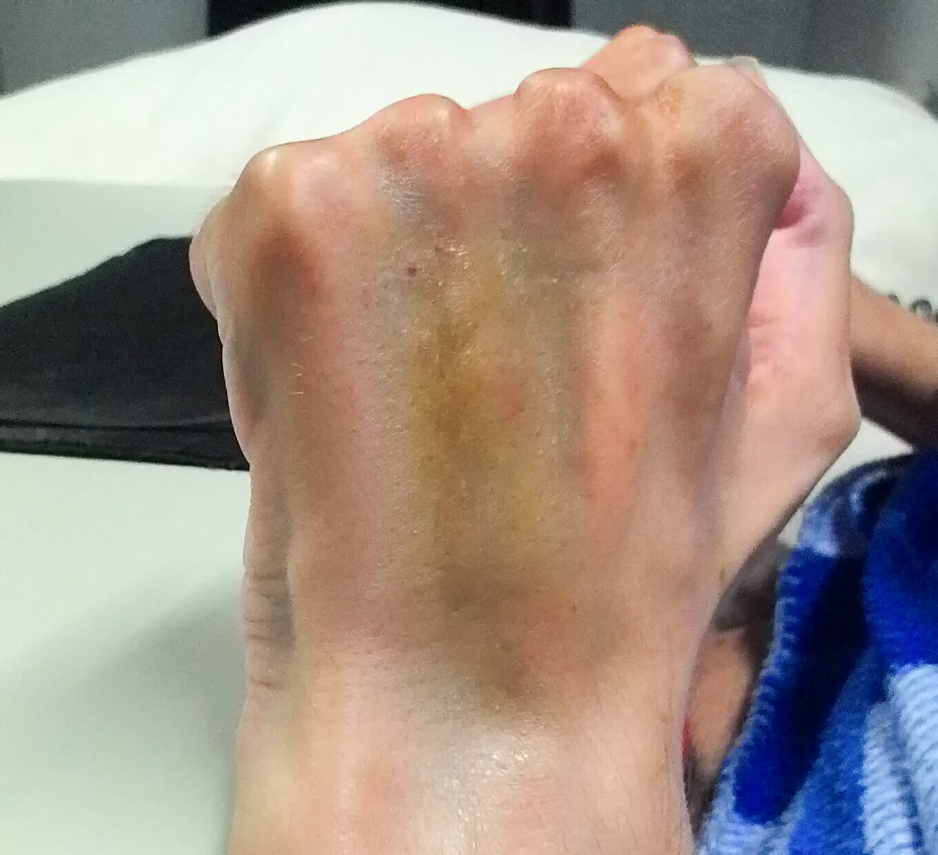 the back of a hand with some purple and yellow bruising